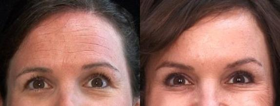 Wrinkle removal by Botox