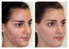 Pigmentation & Chemical Peels