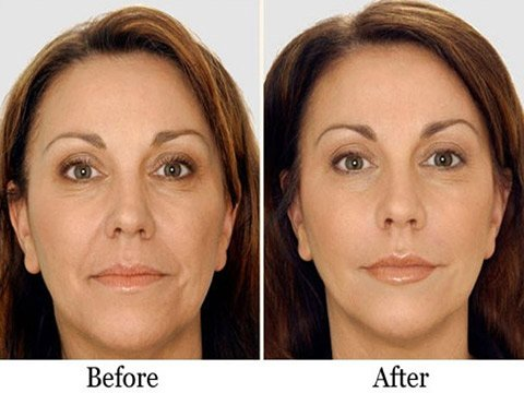Non Surgical Face and Breast Lift